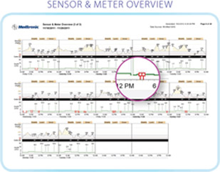 Carelink Pro sensor and meter overview